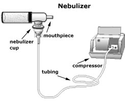 Nebulizer Example